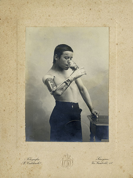 Photographic portrait of an amputee wearing a prosthesis invented by Giuliano Vanghetti, early 20th century.