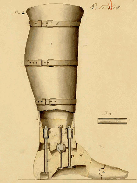 The artificial leg patented by Douglas Bly in 1863.